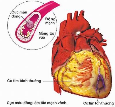 Sôđa tăng nguy cơ mắc bệnh về tim mạch
