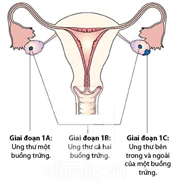 Các giai đoạn phát triển ung thư buồng trứng